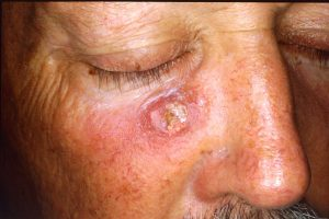 Difference between adenoma and carcinoma